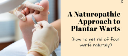 Natural approach to getting rid of plantar warts!