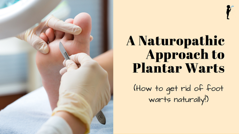 A Naturopathic Approach to Plantar Warts (Getting Rid of